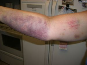 bruised-arm1